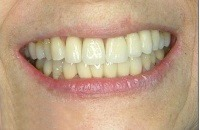 b. porcelain veneers case 2 after