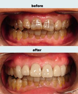 Porcelain veneers case 4 upper only.