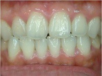 professional bleaching after case1