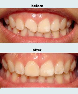 Repair of broken front tooth
