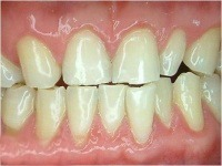 professional bleaching after case2