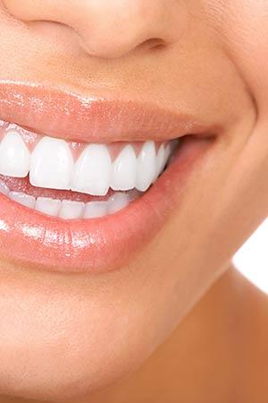 dental veneers koo wee rup